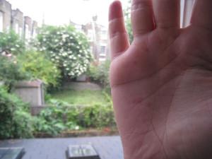 A bőr elváltozásai, bőrbetegségek